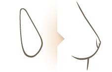 Tip: Borstcorrectie laten uitvoeren door kliniek Veldhoven